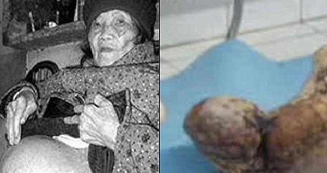 60 Yıldır Hamile Olan Kadın Taş Doğurdu