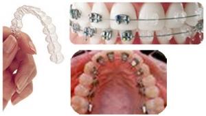 Diş Teli Kabus Olmasın