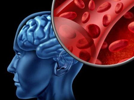Ferkan Tas 14 Yilda 13 Kez Beyin Kanamasi Gecirdi Ferkan Taş 14 Yılda 13 Kez Beyin Kanaması Geçirdi