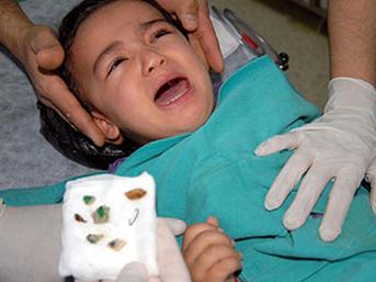 Gazaiantepte Burnundan Fıstık Çıkan Çocuk