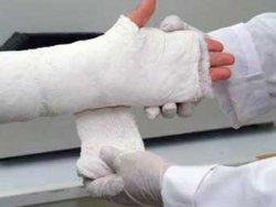 Kırık Kemikleri TEvadi Etmek İçin Kemik Yapıştırıcısı