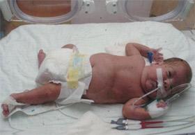 Konyada 23 Haftalık Bebeğe Kalp Ameliyatı Yapıldı