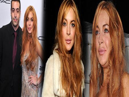 Lindsay Lohan Botox Yaptırdı