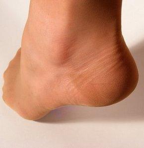 Naylon Çoraplarda Mantar Riski