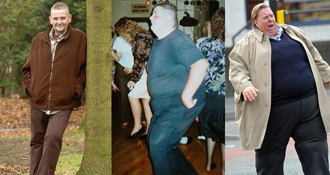 Obez Adam İğne İpliğe Döndü