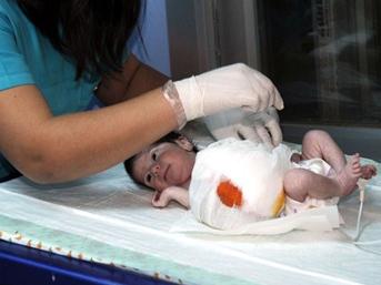 Maraşta Organları Dışarda Doğan Çocuk