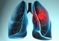 Radon Gazı Kanser Yapıyor