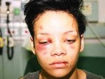 Rihannayı Dövmenin Cezası Temizlik