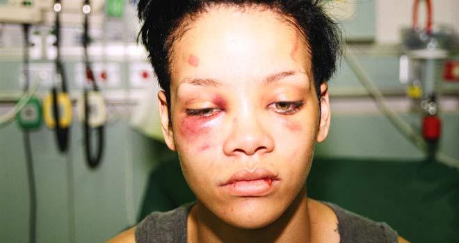 Rihannayı Dövmeye Şok Ceza