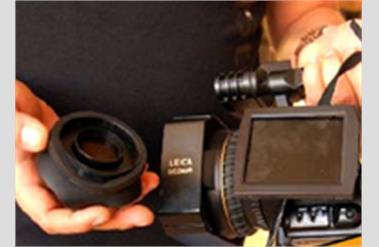 Şanlıurfada Gazetecilere Saldırı